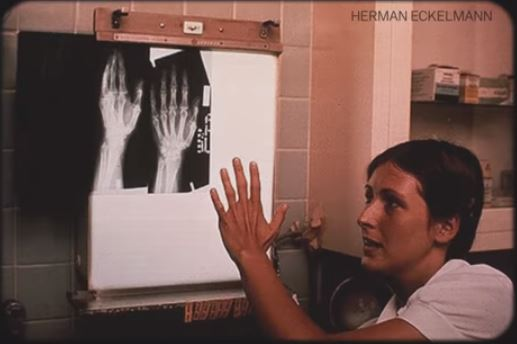 X-ray of hand 99